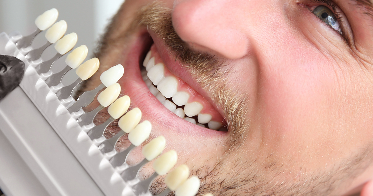 Facette dentaire Paris 14 - Dr Lachaux, Chirurgien Dentiste à Paris 14 0444e7fc5123